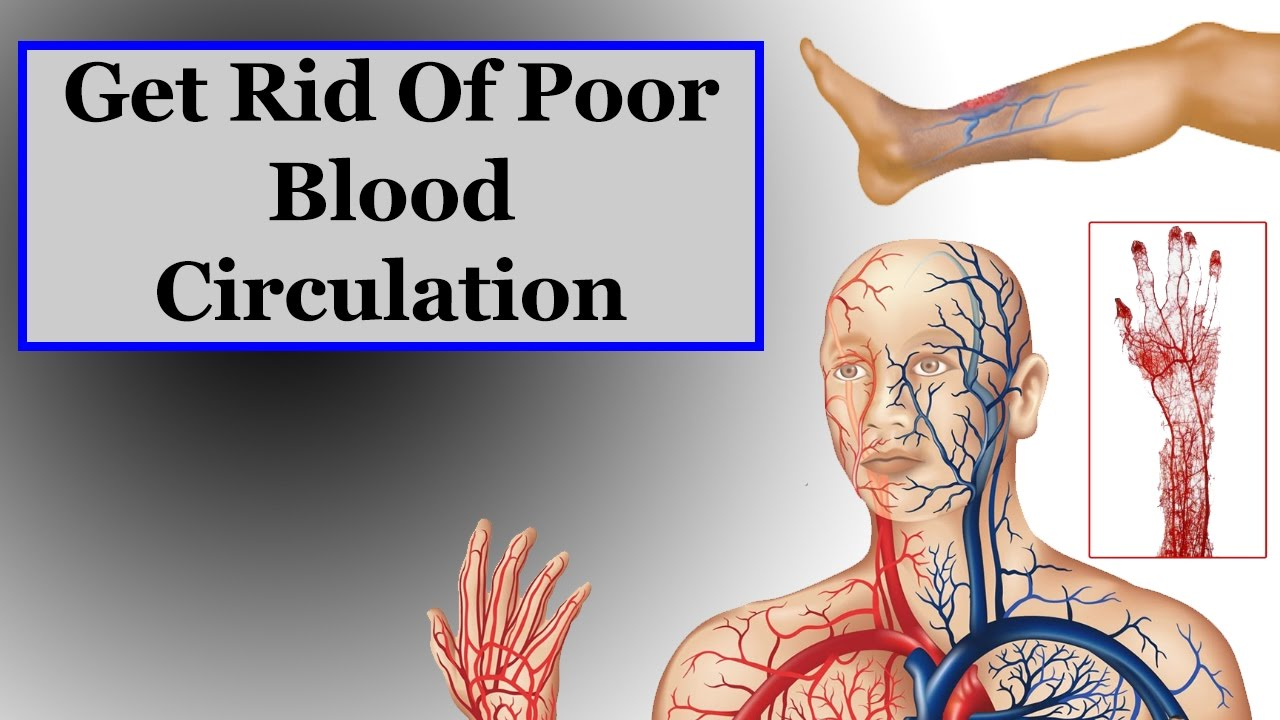 Causes And Symptoms Of Poor Blood Circulation
