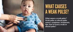 What Causes a Weak Pulse?