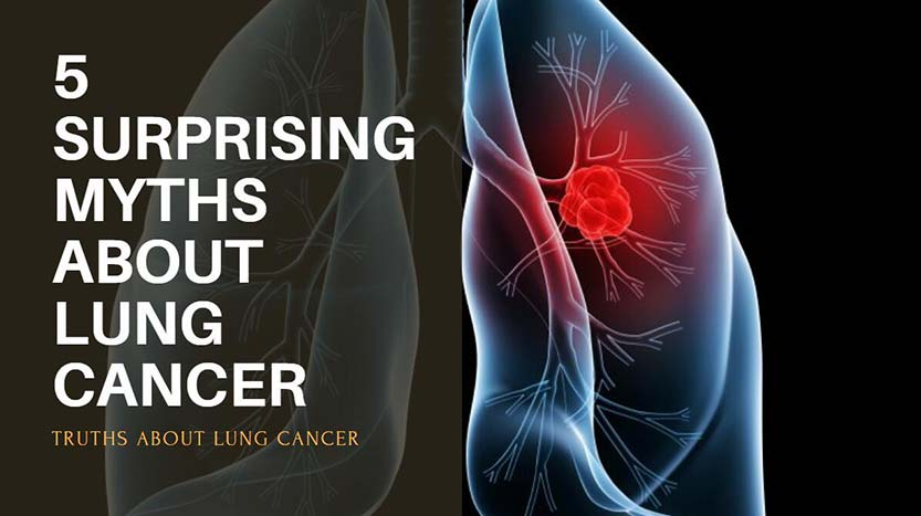 5 Myths About Lung Cancer