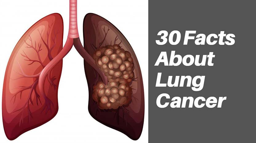30 Facts About Lung Cancer