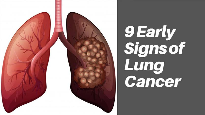 9 Early Signs of Lung Cancer