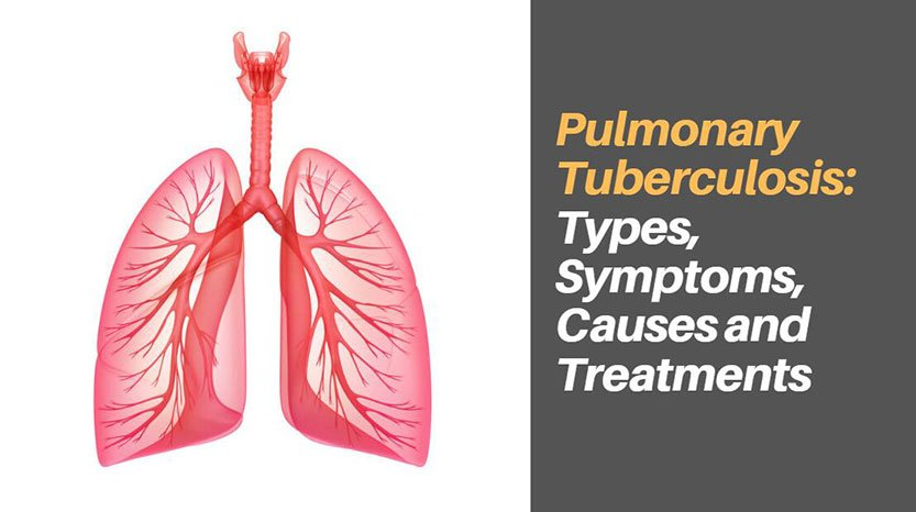 Pulmonary Tuberculosis: Types, Symptoms, Causes and Treatments